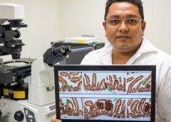 Sintomas ng Colon Cancer: Mga Dapat Malaman Tungkol sa Kanser sa Bituka