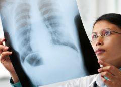 Sintomas Ng Lung Cancer: Mga Dapat Mong Makita At Marinig